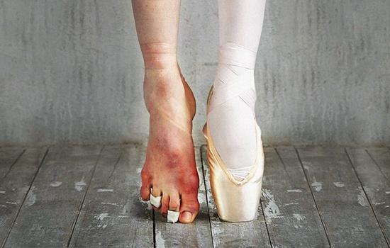 Что сделать чтобы не было мозолей за пяткой от ботинок
